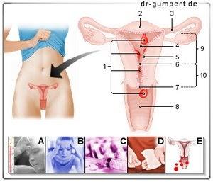 Blutung Nach Polypenentfernung Gebärmutter - Captions