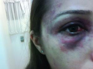 Aída Nunes agredida por ex-namorado da atriz Luana Piovani, na Bahia (Foto: Arquivo Pessoal)