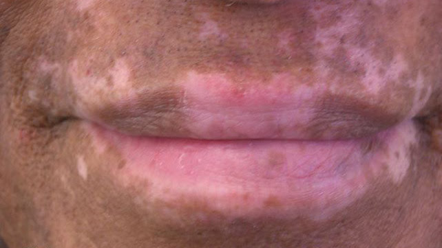 White Spots on Face: What's Causing It?
