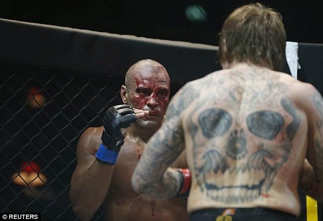 The bloodiedNobrega retained hisInternational Pro Combat title