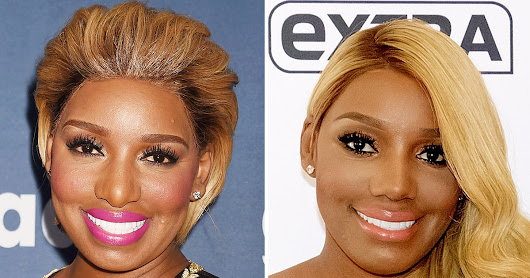 Find Out Why NeNe Leakes Got a Second Nose Job