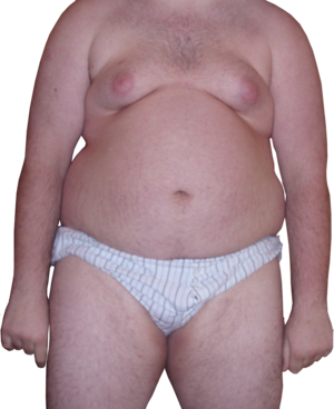 English: Front-On View of an Obese Man. Weight...