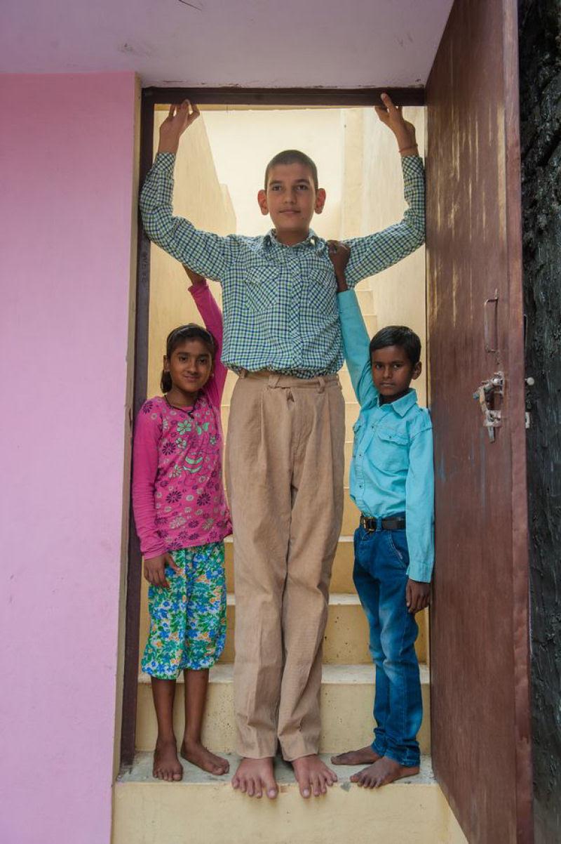 O menino de 8 anos mais alto do mundo mede 2,10 metros 05