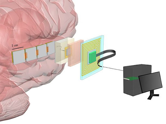 DARPA Wants Brain Implants That Record From 1 Million Neurons
