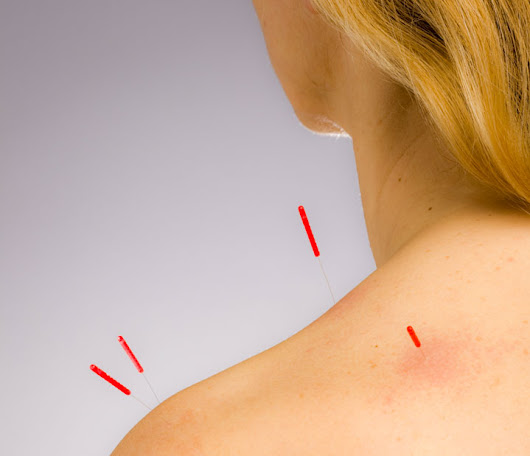 Acupuncture Alleviates Spasticity For Stroke Patients