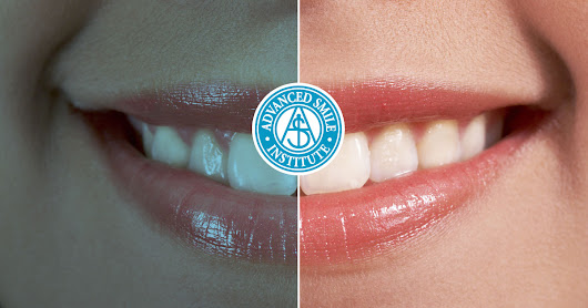Dentistry Before And After Photos Port St. Lucie, FL - Dr. Lens