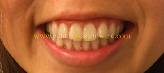 Teeth Whitening Review | ROSES AND WINE