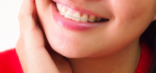 Should I Get Permanent or Removable Retainers? | Bayside Dental & Orthodontics