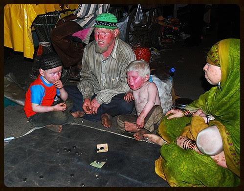I Shoot Albinos by firoze shakir photographerno1
