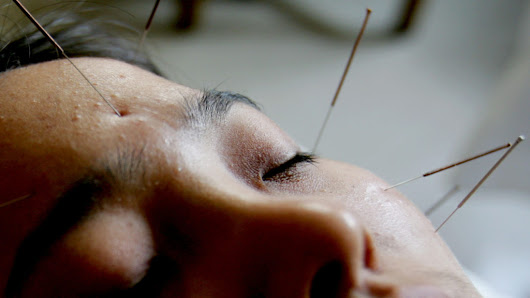 FDA suggests doctors learn about acupuncture for pain management