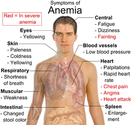Management of Anemia