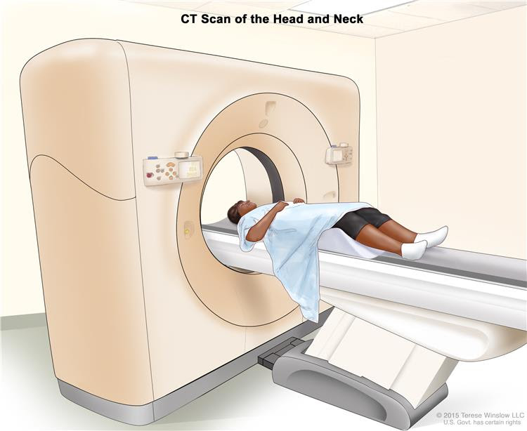 Computed tomography (CT) scan of the head and neck; drawing shows a patient lying on a table that slides through the CT scanner, which takes x-ray pictures of the inside of the head and neck.