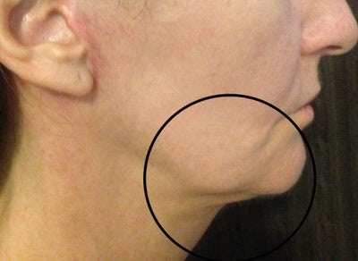 When will it be safe & Where do I go to fix my botched surgery? (photos) Doctor Answers, Tips