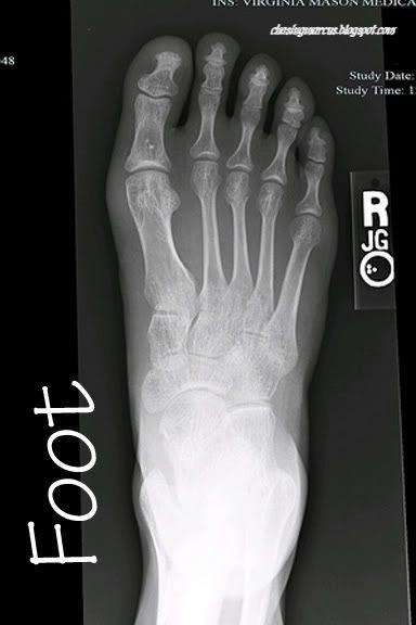 X Ray Calendar : Printable ray images calendar june