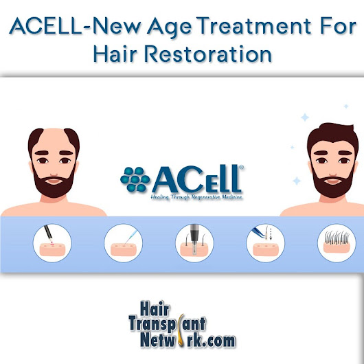ACELL — New Age Treatment For Hair Restoration – Hair Transplant Network – Medium