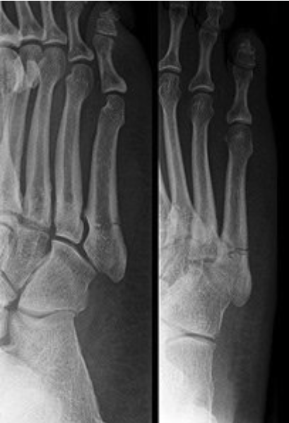 Jump Start Your Fracture Healing | Arlington Foot & Ankle
