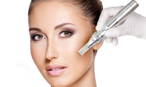 Micro Needling in Mainz | Day-Spa-Mainz
