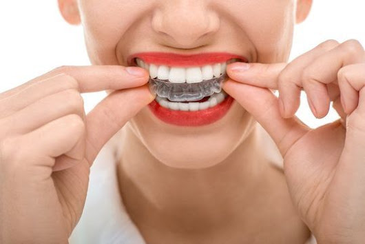 Invisalign® - New York, NY - Long Island, NY - Brooklyn, NYC