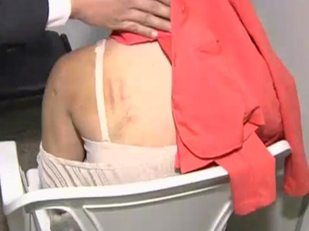 Adolescente de 14 anos levou socos, pauladas e facadas, em Trindade, Goiás (Foto: Reprodução/TV Anhanguera)