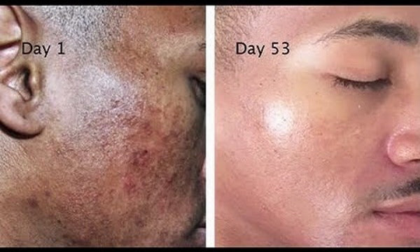 Get Rid Of The Stains, Spots, And Hyperpigmentation With ...