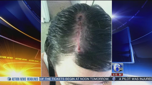 Woman credits hairdresser for catching her skin cancer |