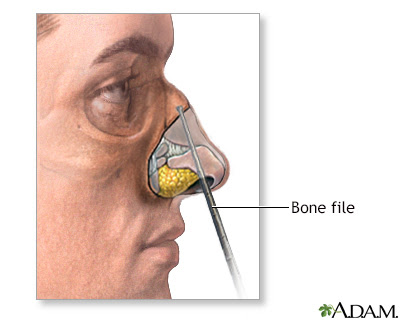 Hie Multimedia Rhinoplasty