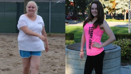 Teen loses 100 pounds, gets tummy tuck - CNN.com