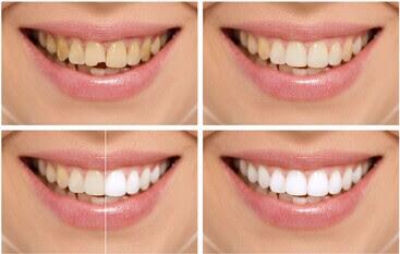 Hydrogen Peroxide Teeth Whitening Side Effects Teethwalls