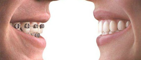 Braces or Invisalign… That is the Question