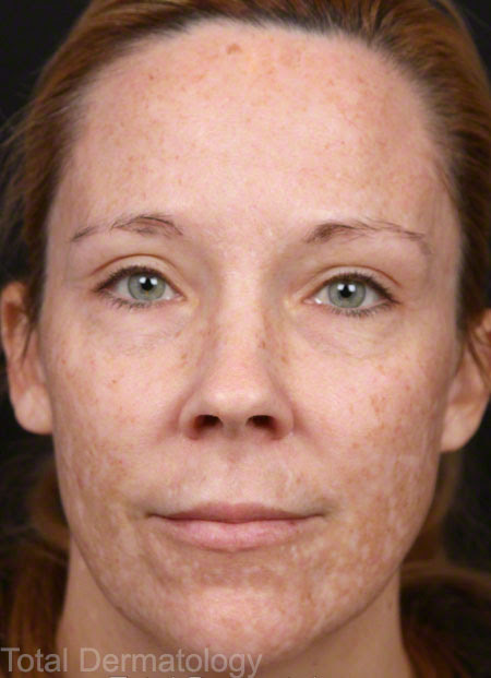 Brown Spots and Age Spots | Irvine Dermatologist