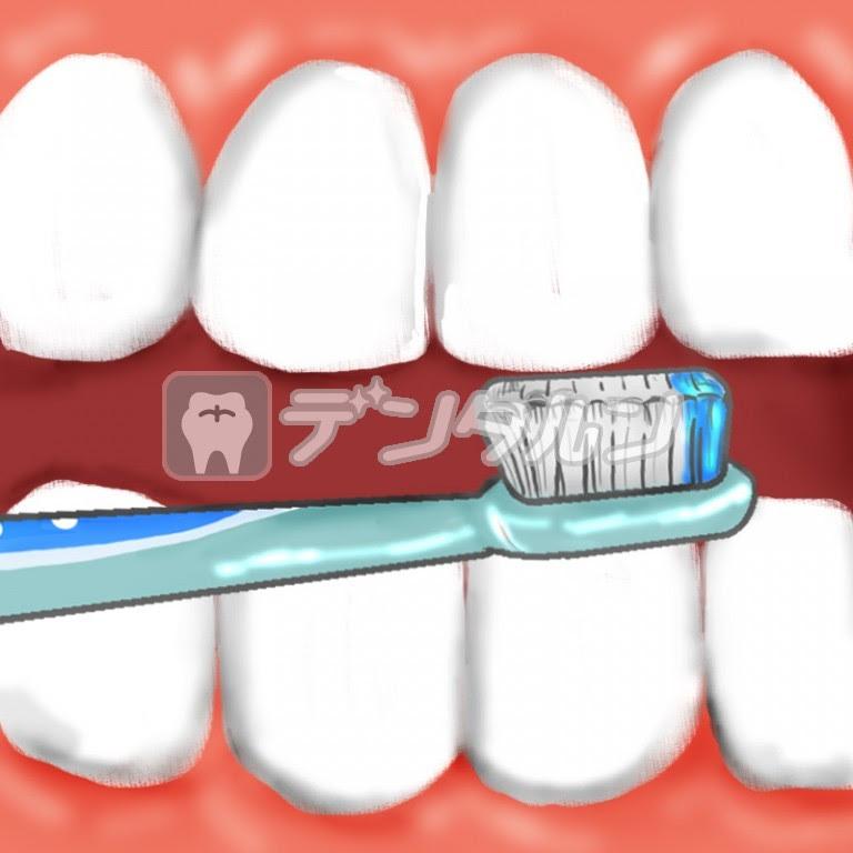 歯磨き 口の中 歯茎 歯ブラシ Byきのこむし夢子 歯科関連の無料素材