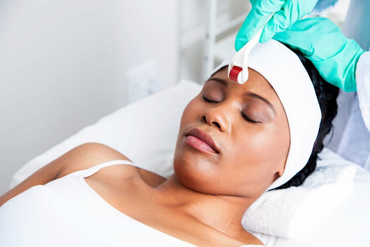 Benefits of Microneedling, the Hottest Skincare Trend | Reader's Digest