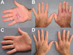 Thumbnail of Hands of  a 62-year-old man in Chicago, Illinois, USA, who had Mycobacterium arupense tenosynovitis, at the time treatment was sought (panels A, B) and after 6 months of treatment (panels C, D).