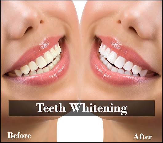 Addressing The Teeth Sensitivity Issue along with Teeth Whitening in London