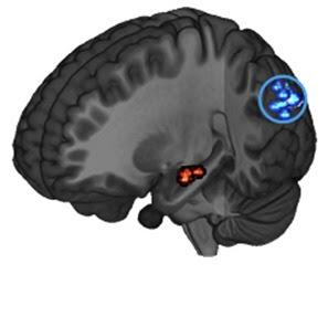 Brain-crop