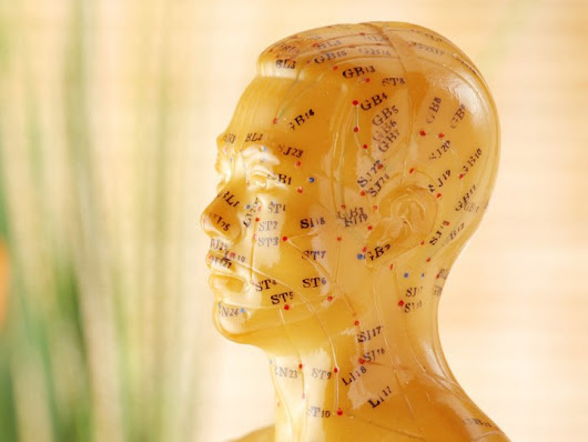 Acupuncture Lessens Migraine Attacks in Chinese Study | Medpage Today