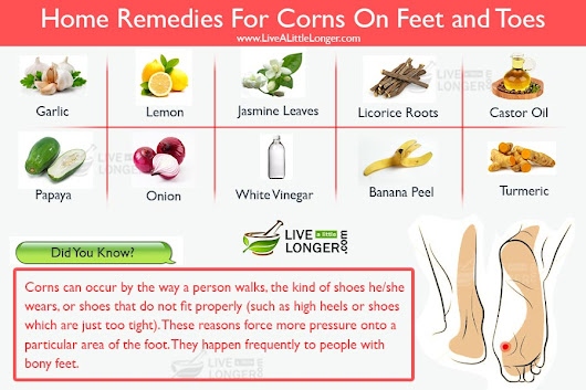12 Miraculous Home Remedies For Corns On Feet and Toes (Calluses)