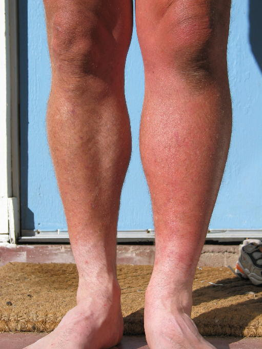 Suffering From Swelling In Left Leg Know Its Cause And Treatment