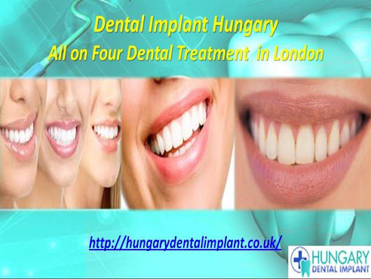 All on Four Dental Treatment  in London Ppt Presentation
