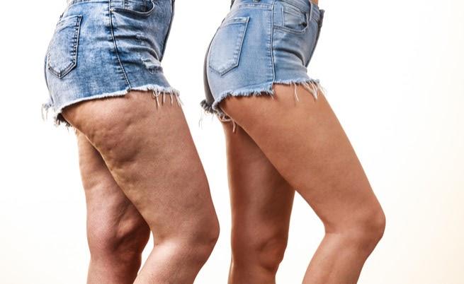 Gambe Con Cellulite ~ Prodotto Speciale Pulizia Viso Fai Da Te