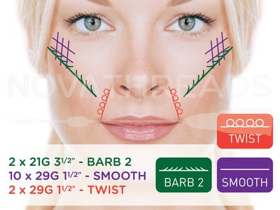 NovaThreads Injectable PDO Sutures for Non-Surgical Lunchtime Facelifts Now Available in Doylestown