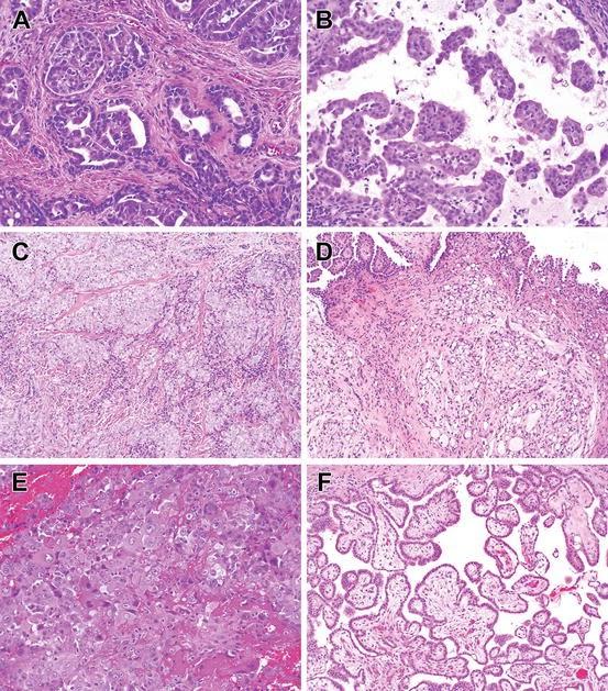 Mesothelioma Histology Microvilli