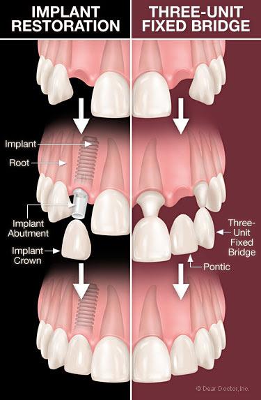 Dental implants vs bridgework