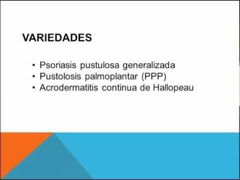 productos para disminuir el acido urico remedios naturales para acido urico menu para el acido urico alto
