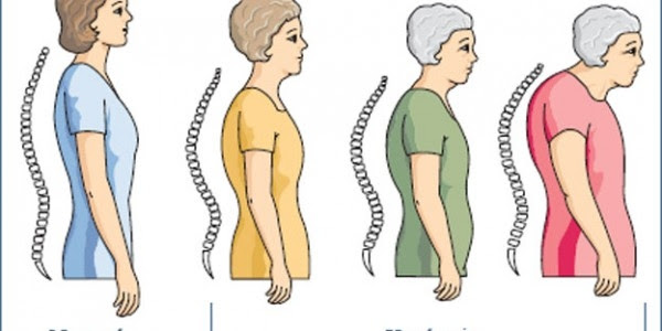 Mencegah Osteoporosis
