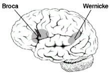 IMAGEM: Área de Broca no cérebro (Wikipédia)