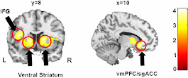 High Moral Reasoning Associated With Increased Reward System Activity