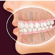 Teeth loss can be easily cured with Dental Implants in Ahmadabad