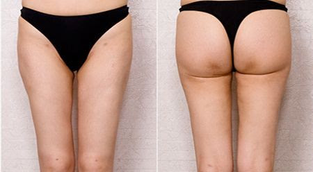 Liposuction in Korea - Top Liposuction Surgeon in Seoul