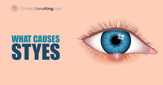 What Causes Styes? Eye Stye Treatment and Symptoms
